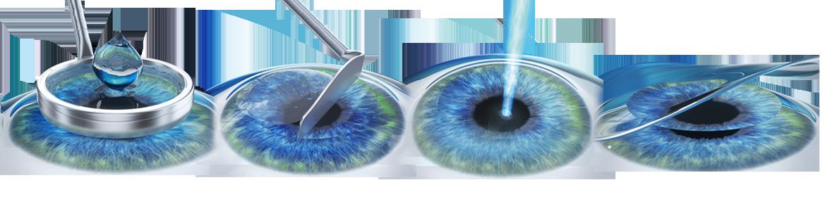 recuperare după corectarea cu laser a miopiei